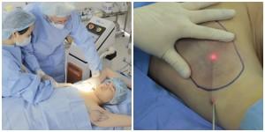Rủi ro khi phẫu thuật cắt tuyến mồ hôi nách và cách chữa hôi nách an toàn nhất
