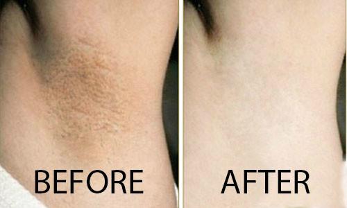 cách trị thâm nách bằng Skin Light