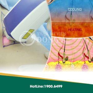 Cơ chế tác động thông minh của Ultra Dry khi loại mùi hôi nách
