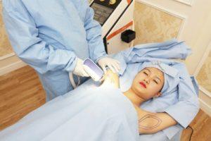 Video trị hôi nách với công nghệ Ultra Dry